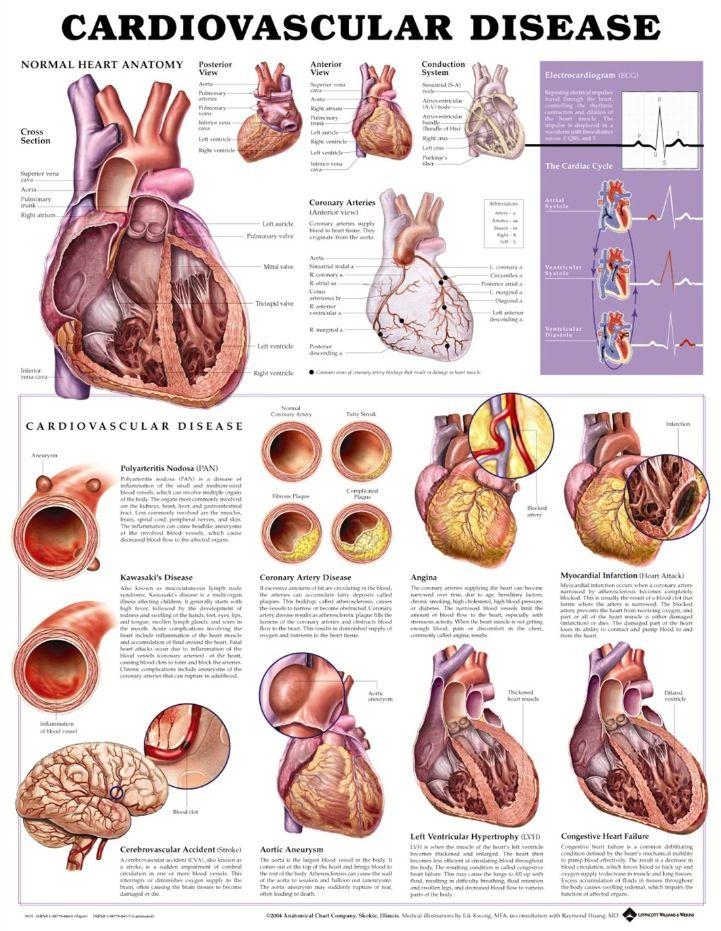 Cardiovascular System Disease Includes Kawasaki Disease Pan