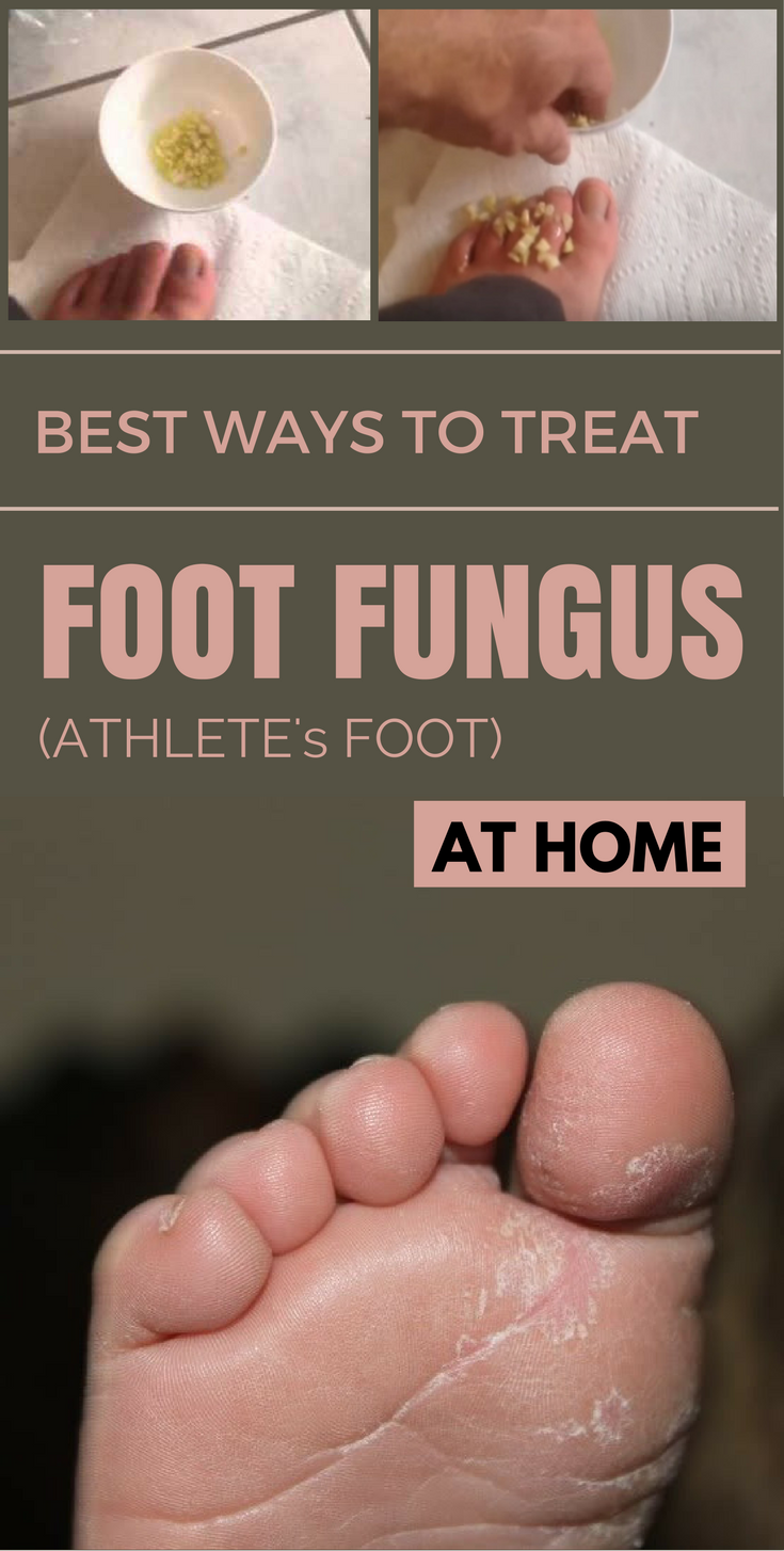 Treatment foot fungal infection