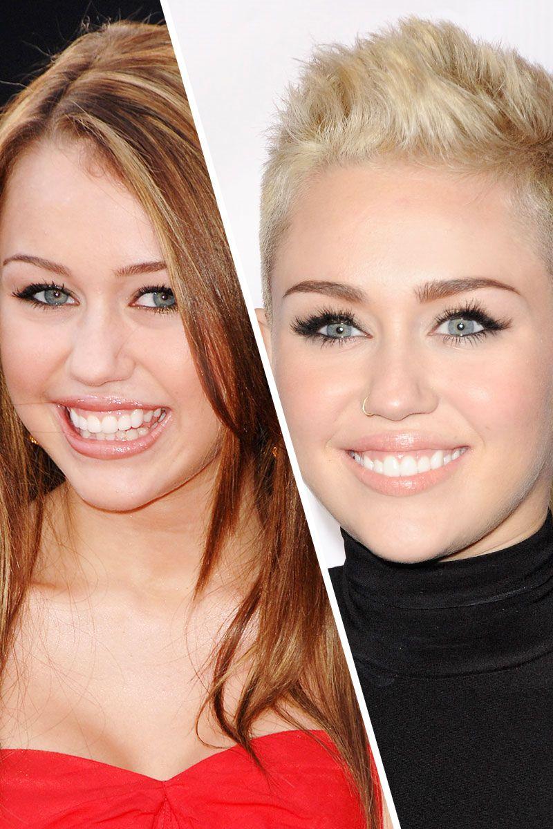Celebrities Who Wear Braces - West London Orthodontics