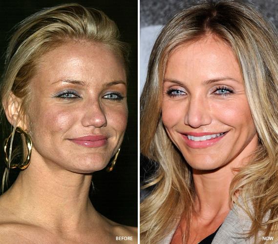 Pin On Best Of Celebrity Beauty Secrets