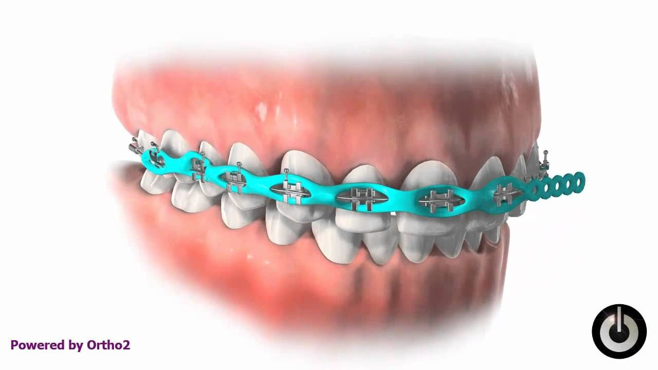 Pin By Dehaan Orthodontics On Treatment Dental Braces