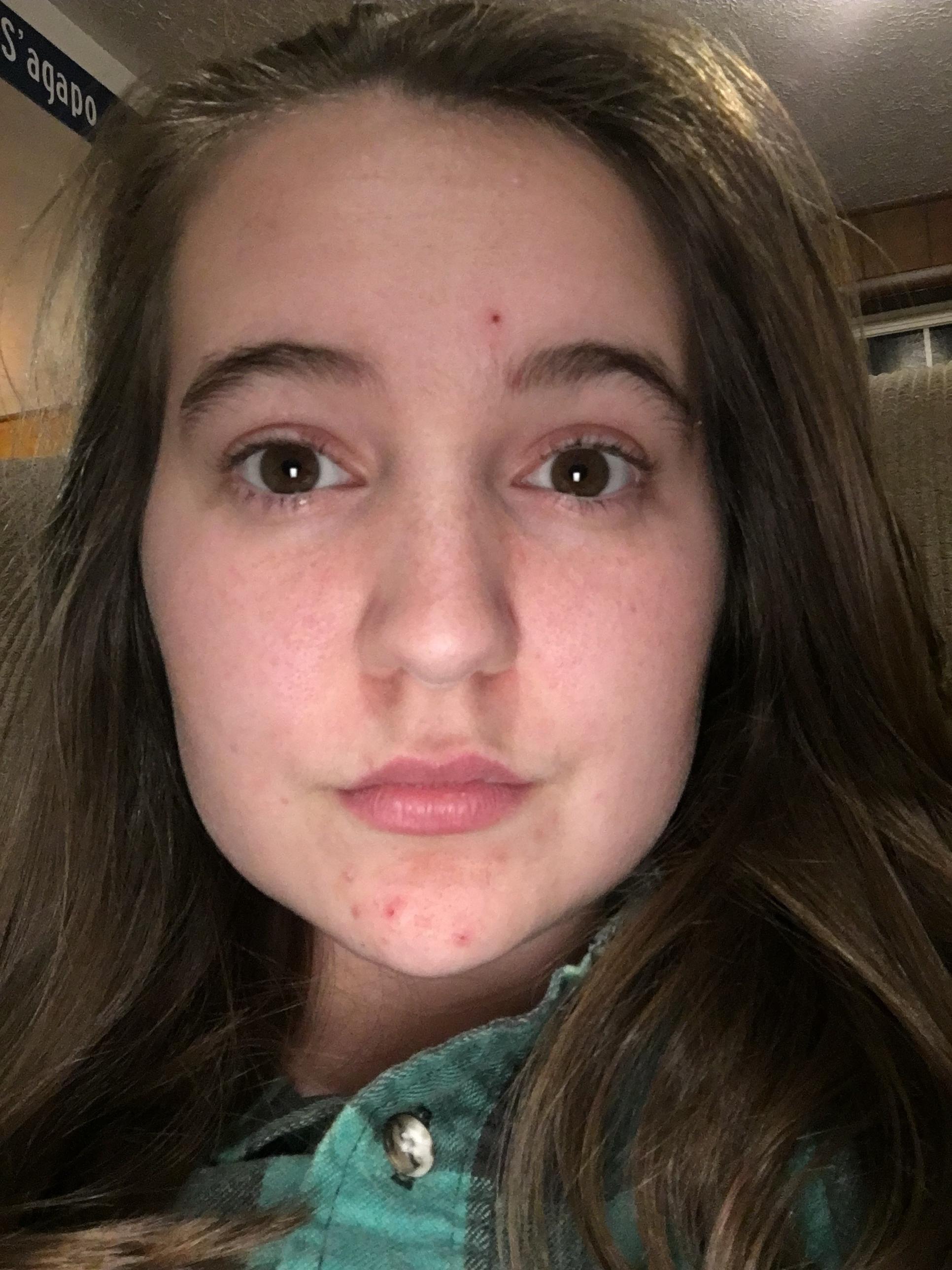 acne] ive had clear skin all my life. until i had a mandatory birth