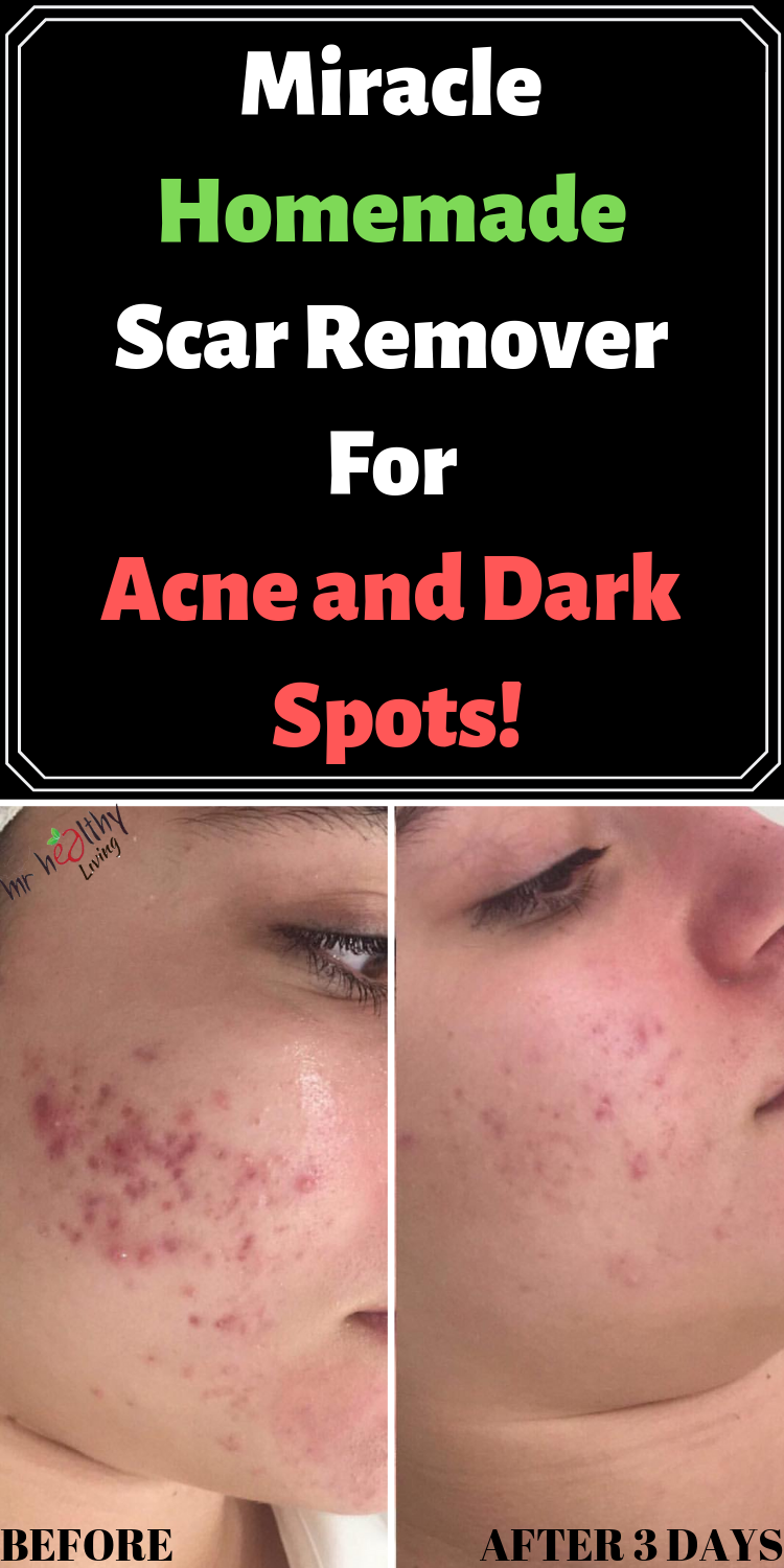 Pin On All About Skin Care