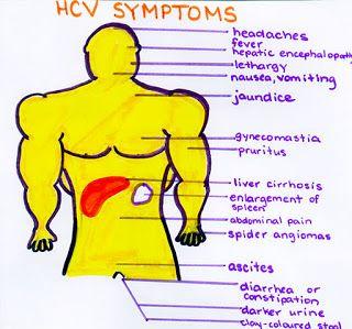 symptoms of hep c