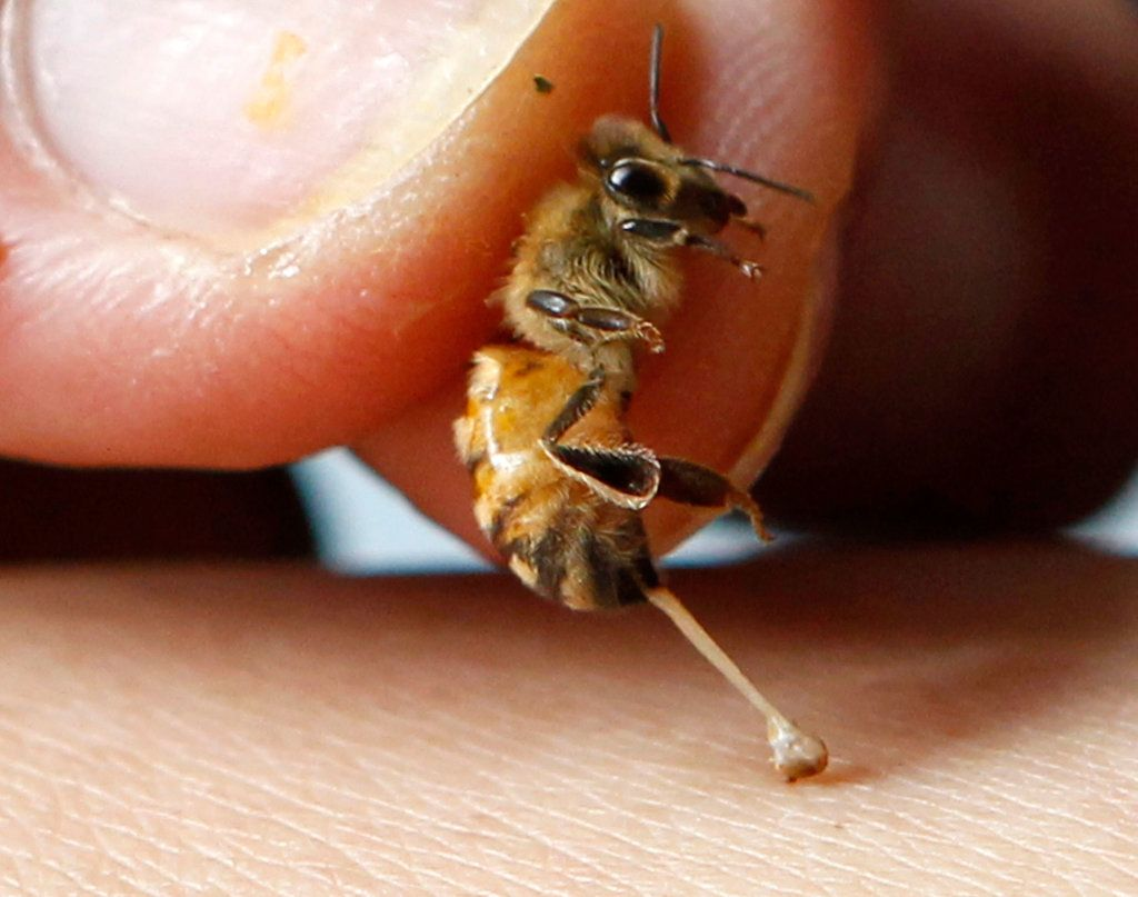 How Bee Sting Therapy Works Remedies for bee stings, Bee