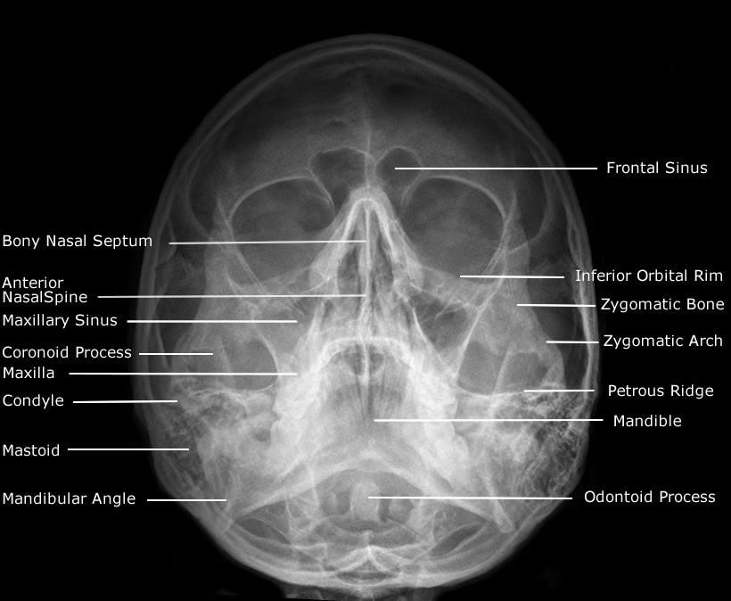 Waters skull | This is RADiology | Pinterest | Radiology, Rad tech ...