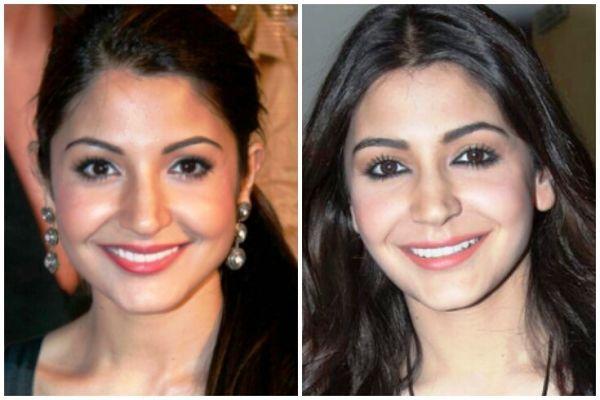 Anushka Sharma Height, Weight, Age, Affairs, Measurements & Much More! -  StarsUnfolded   Plastic surgery, Anushka sharma, Lip job