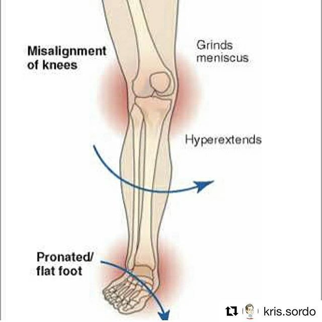 Great information from @kris.sordo on how flat feet or over pronation  effects joints