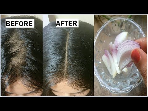 Onion Juice For Hair Regrowth Before And After Onion