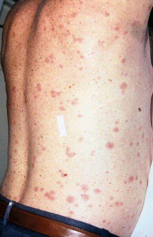 Human lice (Pediculus) - medicine.ekmd.huji.ac.il