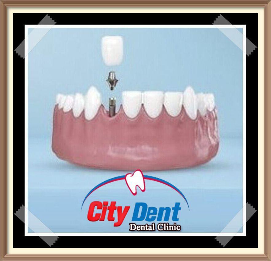 لا بد أن يعلم الجميع أن مجال زراعة الأسنان الفورية لم يظهر من العدم فجأة على ساحة طب الأسنان بل مرت بالكثير من Dental Clinic Live Lokai Bracelet Lokai Bracelet