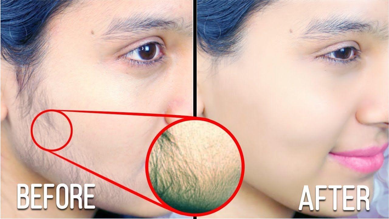 How To Remove Facial Hair Permanently │ Facial Hair