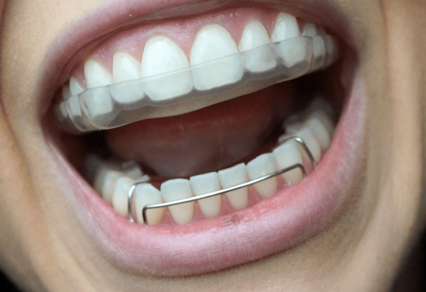 Dental retainers help to maintain that beautiful smile on