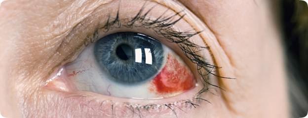 subconjunctival hemorrhage | eyes | pinterest | eyes, Skeleton