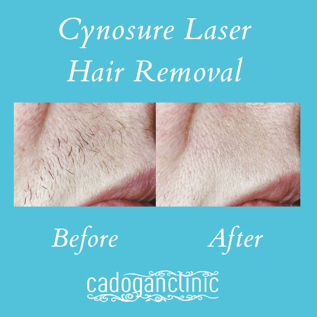 Cynosure Laser Hair Removal Beforeandafter Before After Beforeafter Cadoganclinic London Cosmetics Beauty Skin Treatments Laser Treatment Hair Removal