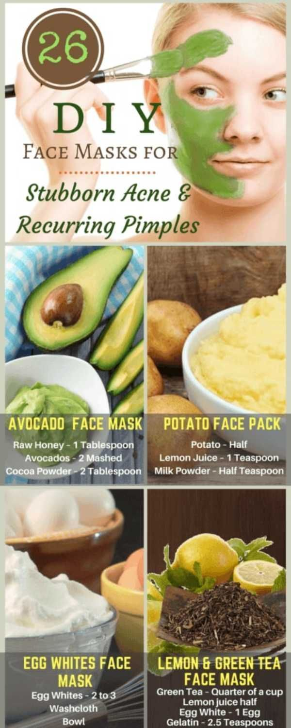 Gelatin mask for acne and acne