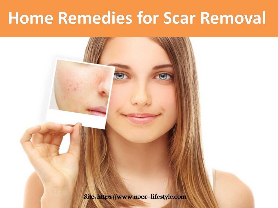 Home Remedies For Scar Removal Homeremediesforscarremoval