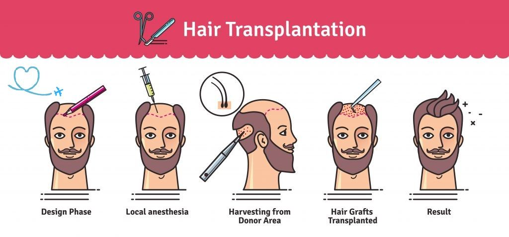 How Does Hair Transplant Work How to do hair