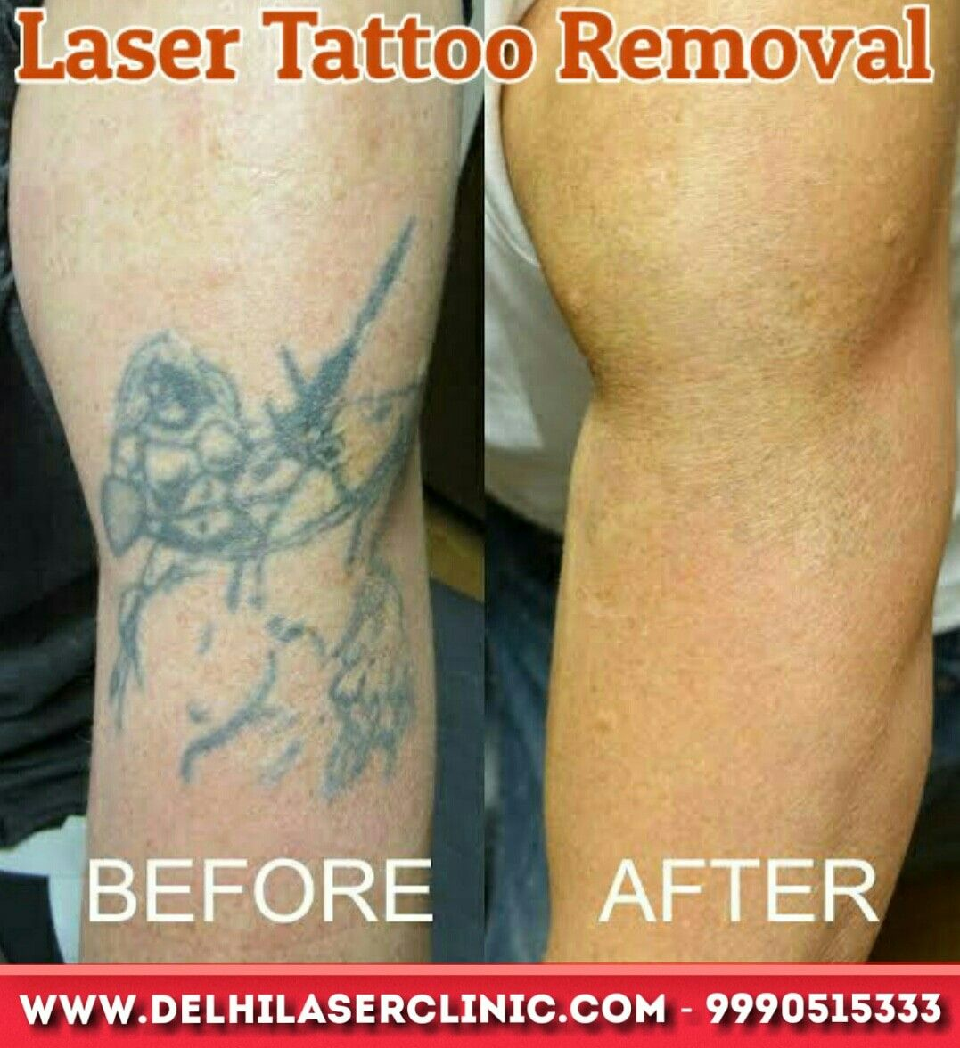 49++ Best Tattoo removal cost in delhi ideas