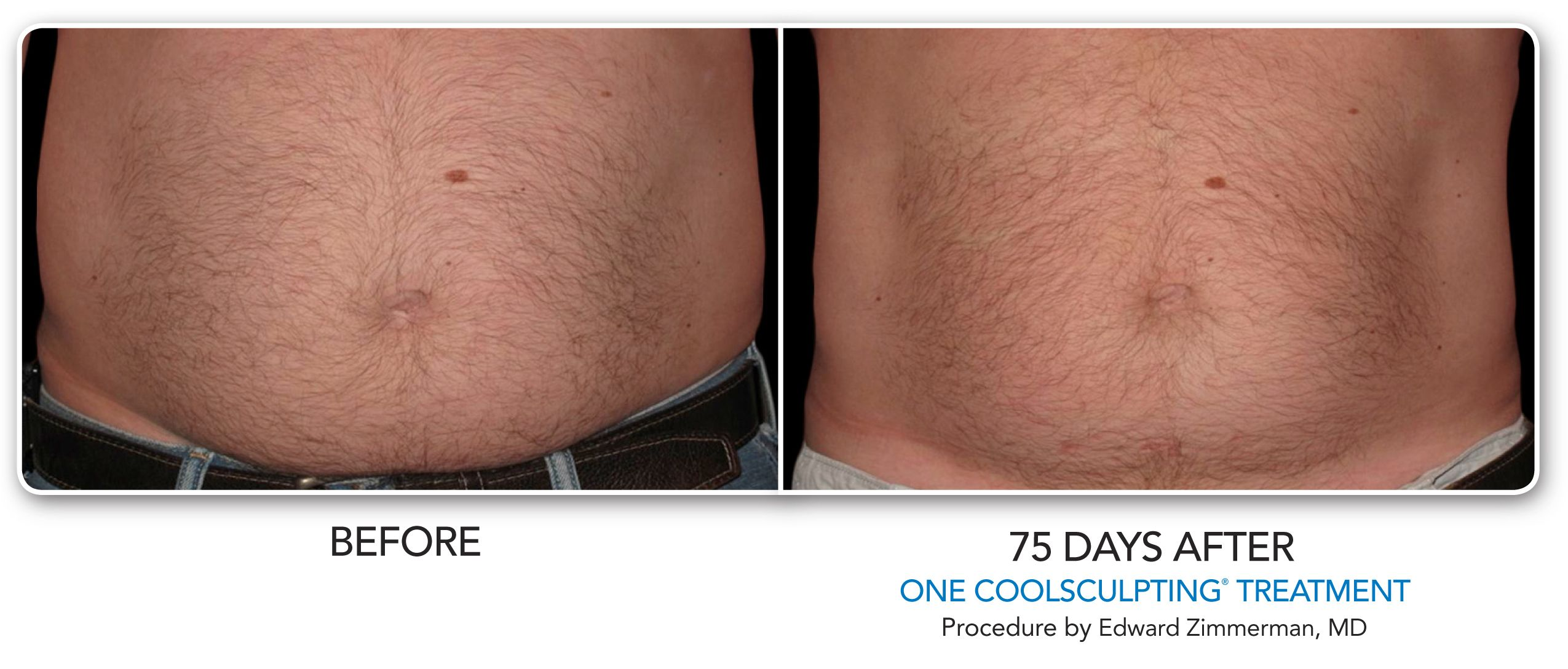 Pin On Coolsculpting Complete Center Of Raleigh