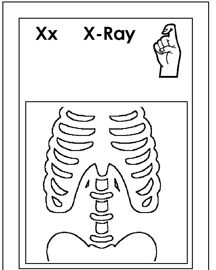 Asl for X coloring page | ASL/American sign language alphabet ...
