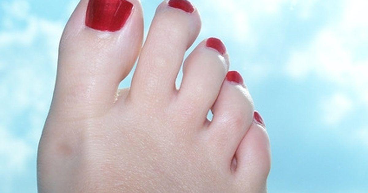 infeccion al dedo del pie