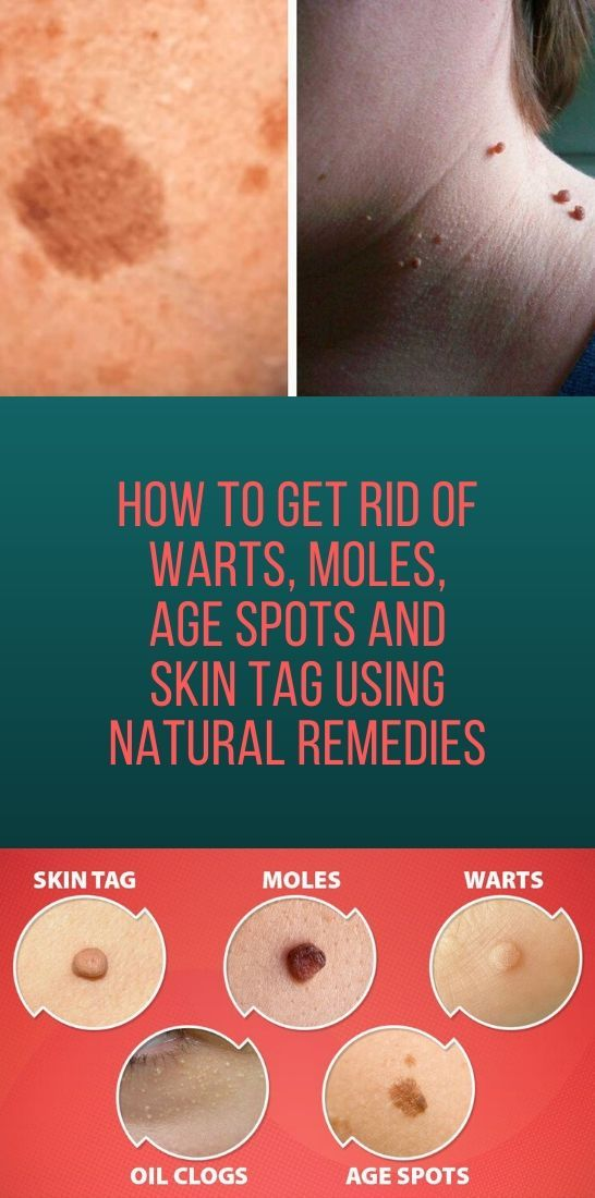 How To Get Rid Of Warts, Moles, Age Spots And Skin Tag Using Natural Remedies