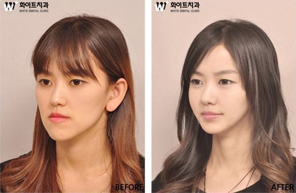31 crazy photos before and after Korean plastic surgery  #after #before #crazy #…
