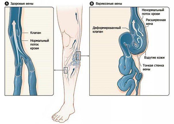 Ce trebuie făcut dacă venele din picioare sunt umflate? - Anatomie October, Evenimente medicale