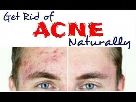 life hacks to get rid of acne