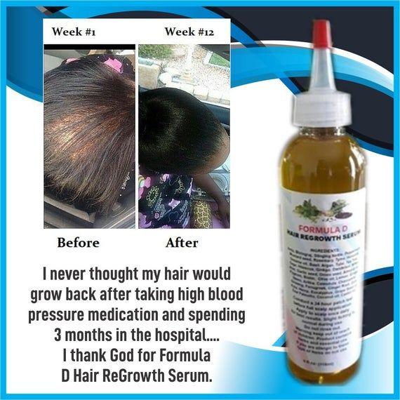 Hair Oil Formula D Hair ReGrowth Serum For Fast Ha