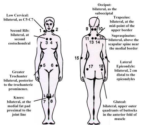 Fibromyalgia Tender Point Map - Address DB