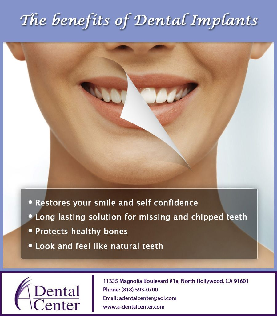The benefits of Dental Implants Dental implants, Dental