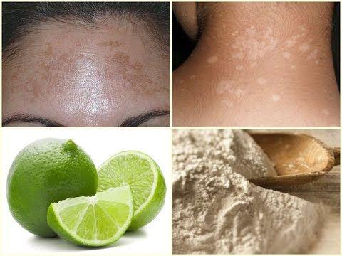 que hacer para quitar manchas blancas en la piel