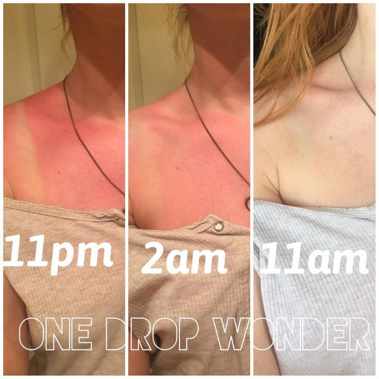 One Drop Wonder from Limelight by Alcone This is the best sun burn cure  remedy Look at these incredibly results in just 12 hours Its the best kept summer secret I wish I...