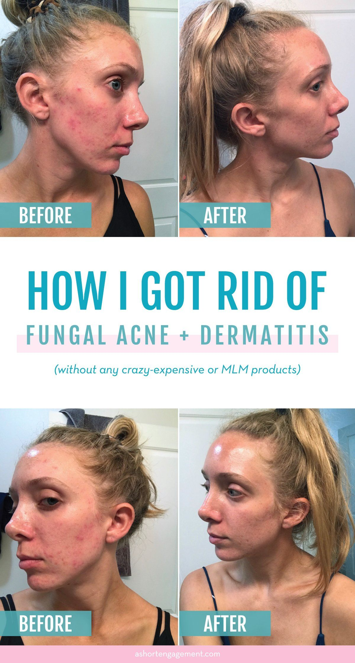 Acne Fungal Acne Or Dermatitis How I Cured The Worst Skin Of My