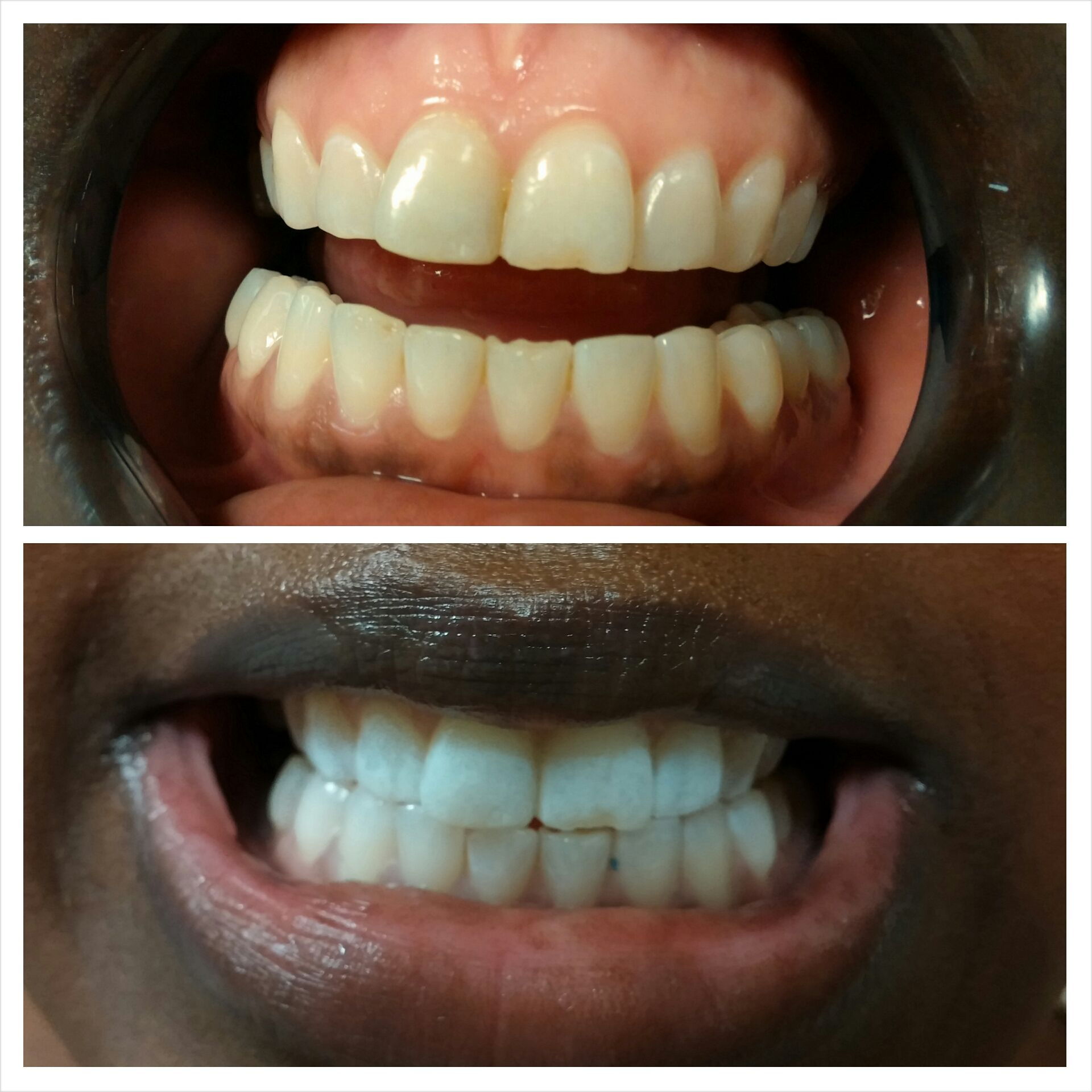 Colgate teeth whitening teeth whitening products pinterest teeth - Led Laser Teeth Whitening Before After