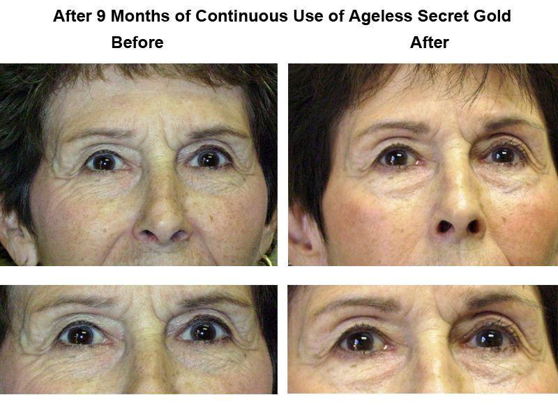 #AgelessSecret