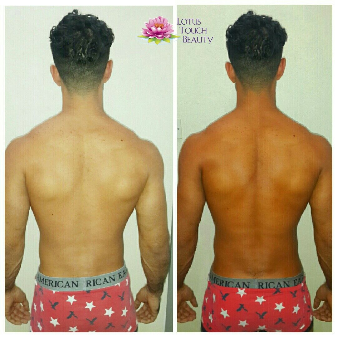 Spray Tan Before And After By Saadiya Nakhuda At Lotus Touch Beauty Using Aviva Labs Spray Tan Salons Best Tanning Lotion Spray Tan Solution