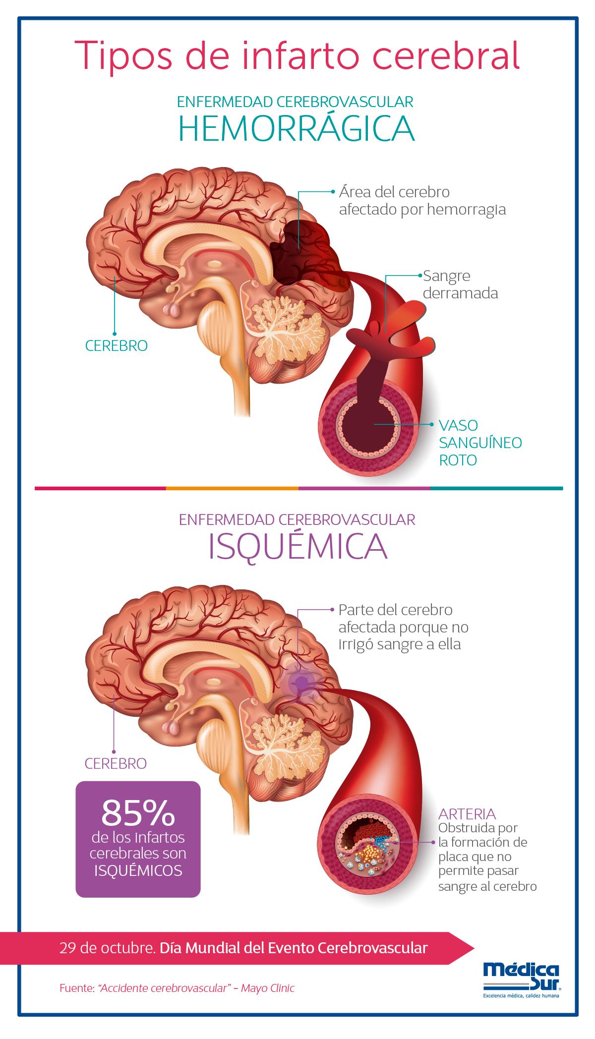 diabetes causada accidente cerebrovascular