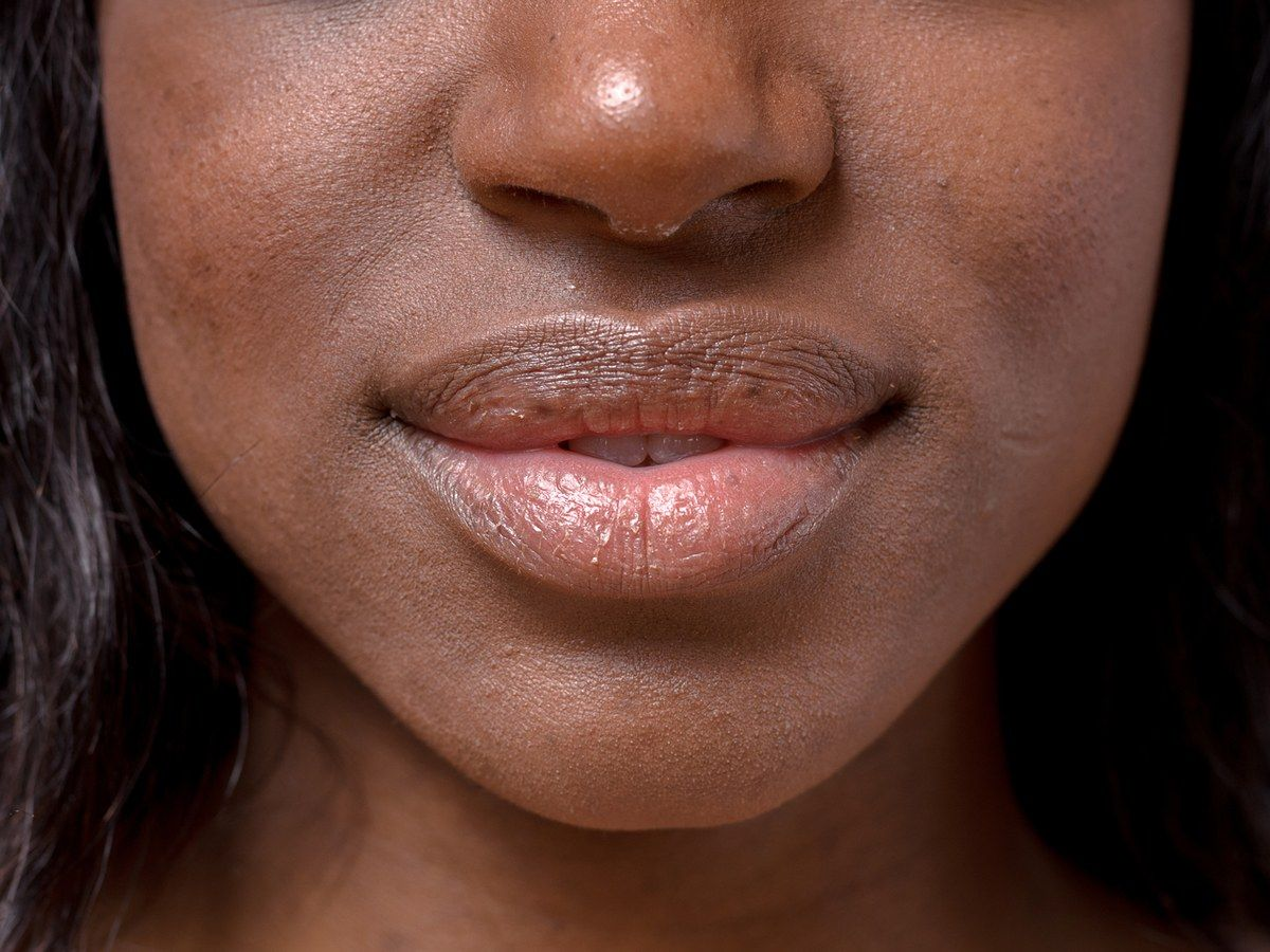 We Asked Derms How To Keep Dry Lips Moisturized During