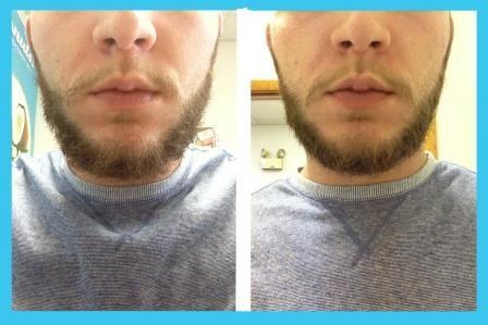 Coconut Oil Beard Softener - Great for No-Shave November
