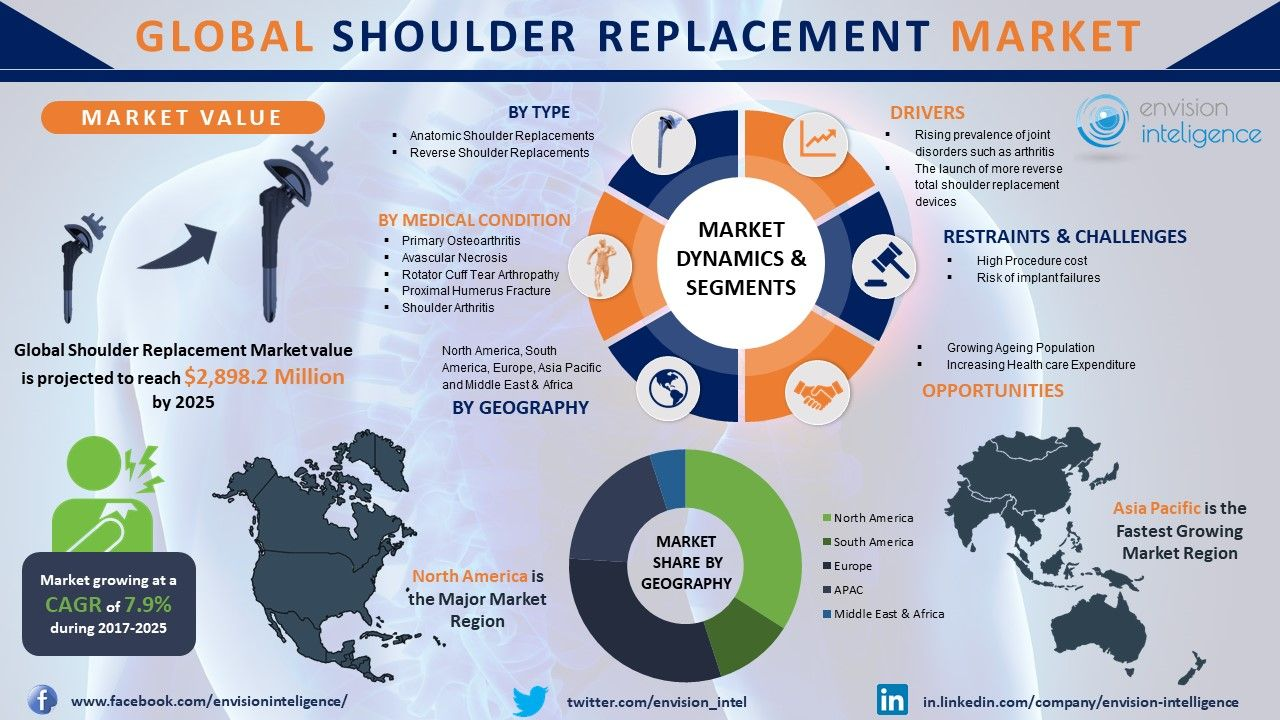 Advancements In Shoulder Replacements Laid The Path To The New Procedures Where The Ball Is Preserved And Resurfaced Restoring Th Marketing Replacement Global