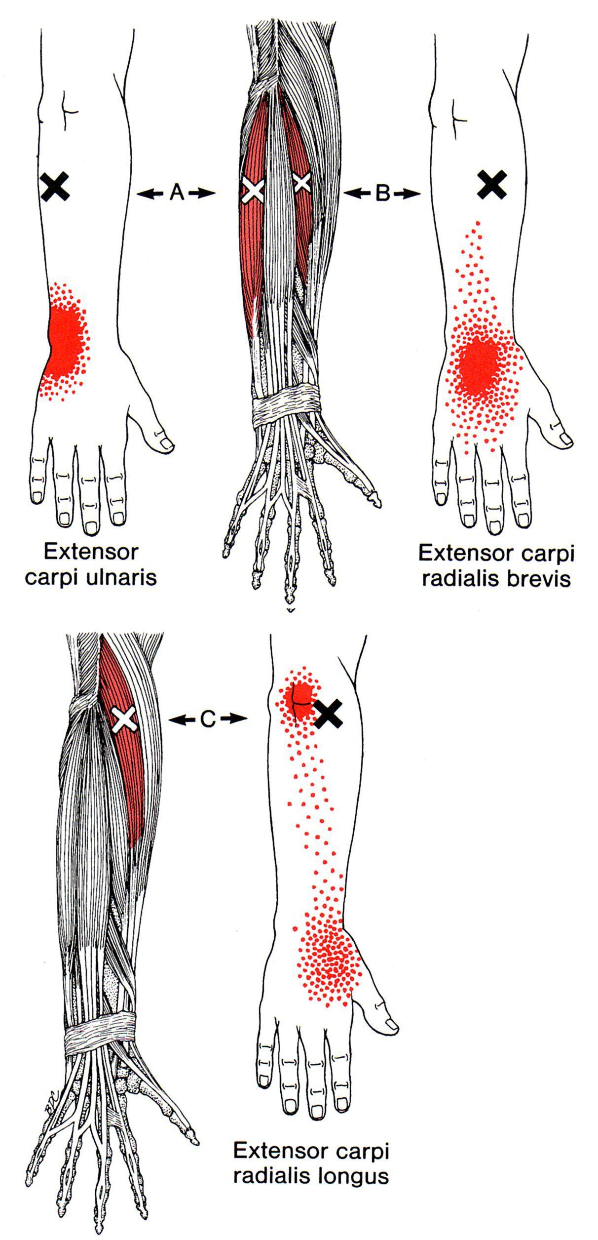 Pin on Healing: Wrist/Arm