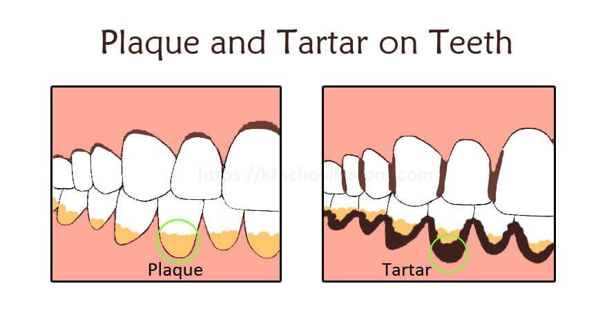 Dentalcalculus Is A Dental Problem In Which The Calculus Or Tartar Is A Form Of Hardened Plaque This Is Caused By Saliva And Gingiva Teeth Dental Human Teeth