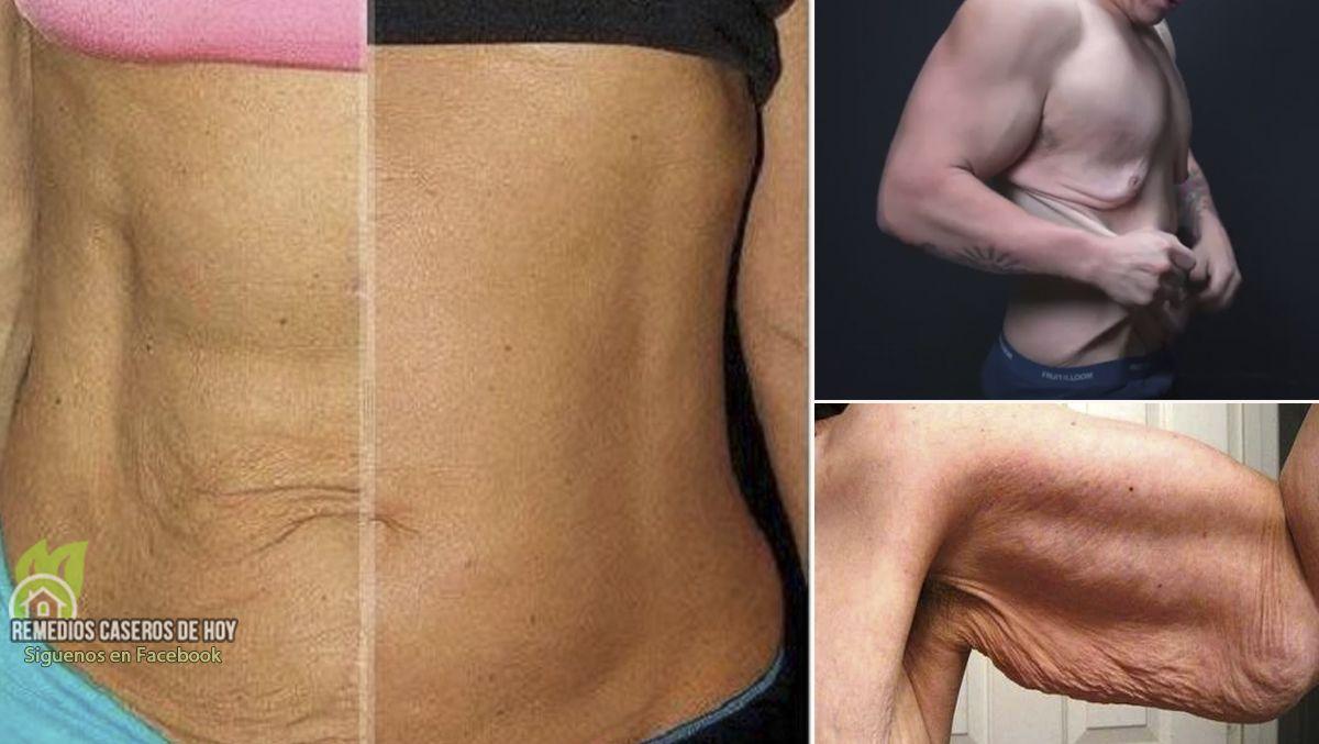 Como reducir la piel sobrante despues de perder peso