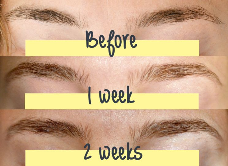 Brow Growth Serum With Images Brow Growth Serum Eyebrow Care