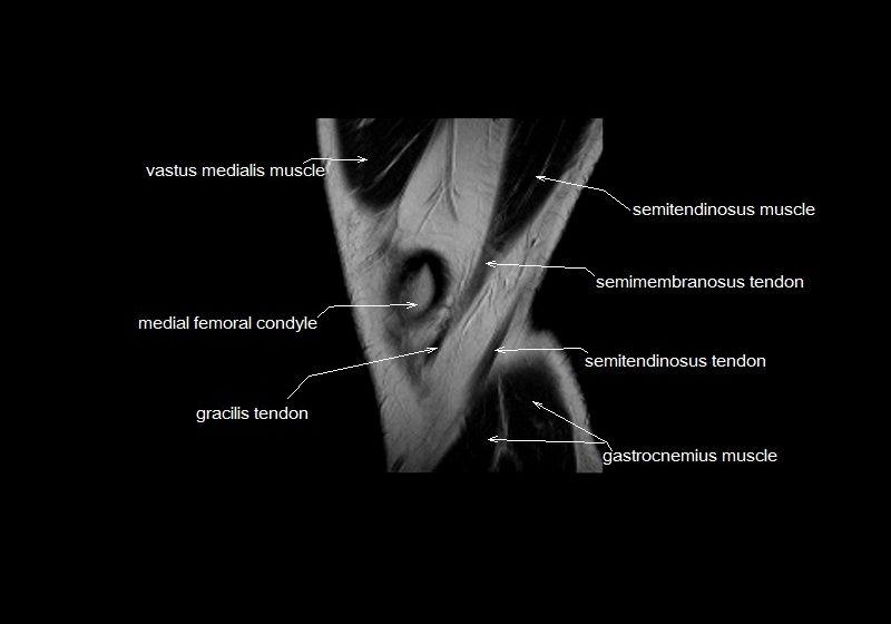 mri knee anatomy | knee sagittal anatomy | free cross