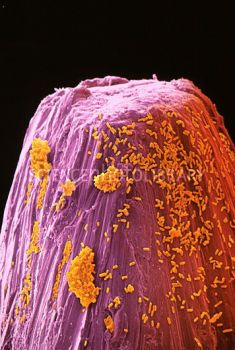 Rod-shaped bacteria (yellow) on household pin