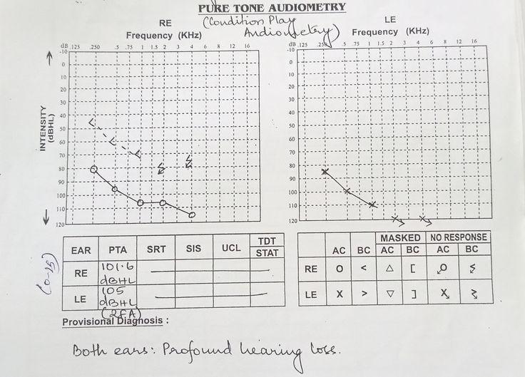 Early Births: Experiences Of A Physician Searching For Babies Who Are Deaf And Dumb At Birth, 14th Medical Series By Dr. Idangar Pavalan. ஆதியில் பிறந்தவர்கள் (பிறவியிலேயே காது கேளாத மற்றும் வாய் பேசாத குழந்தைகளைத் தேடியலைந்த ஒரு மருத்துவனின் அனுபவத் தொடர்) 14